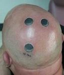 10-Pound-Head